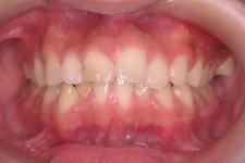 叢生、上下顎前突(両突歯列) 治療前 写真1