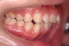 叢生、上下顎前突(両突歯列) 治療前 写真2