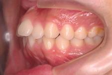 叢生、上下顎前突(両突歯列) 治療前 写真3
