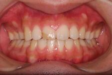 叢生、上下顎前突(両突歯列) 治療後 写真1