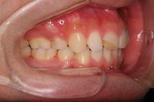 叢生、上下顎前突(両突歯列) 治療後 写真2