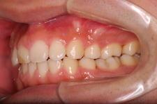 叢生、上下顎前突(両突歯列) 治療後 写真3