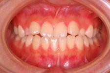 中立咬合、両突歯列、左側偏位顎 治療前 写真1