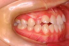 中立咬合、両突歯列、左側偏位顎 治療前 写真2