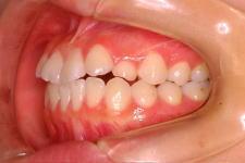 中立咬合、両突歯列、左側偏位顎 治療前 写真3