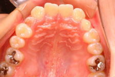 中立咬合、両突歯列、左側偏位顎 治療前 写真4