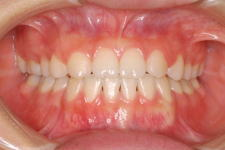 中立咬合、両突歯列、左側偏位顎 治療後 写真1
