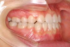 中立咬合、両突歯列、左側偏位顎 治療後 写真2