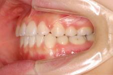 中立咬合、両突歯列、左側偏位顎 治療後 写真3