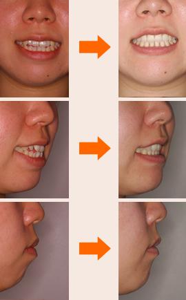 初診時の診断:「開咬合、両突歯列、叢生、右側偏位顎」