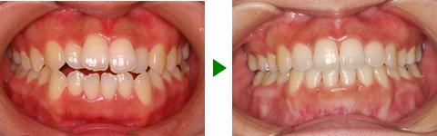 開咬合、両突歯列、叢生、右側偏位顎 治療前後 写真1