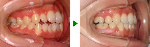 開咬合、両突歯列、叢生、右側偏位顎 治療前後 写真2