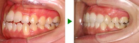 開咬合、両突歯列、叢生、右側偏位顎 治療前後 写真3