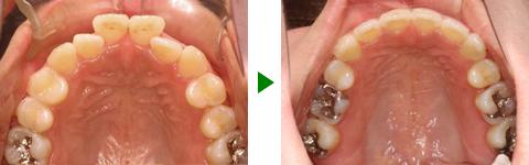 開咬合、両突歯列、叢生、右側偏位顎 治療前後 写真4