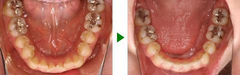 開咬合、両突歯列、叢生、右側偏位顎 治療前後 写真5
