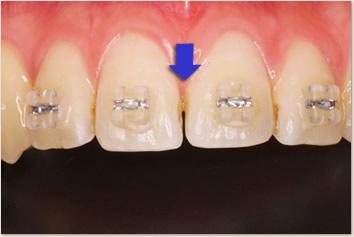 歯と歯の接触点を削った所