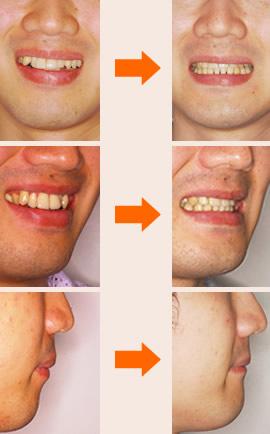 初診時の診断:「中立咬合、両突歯列、叢生歯列」