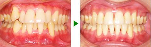 中立咬合、叢生、両突、右側偏位顎 治療前後 写真1