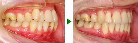 中立咬合、叢生、両突、右側偏位顎 治療前後 写真2
