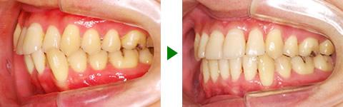 中立咬合、叢生、両突、右側偏位顎 治療前後 写真3