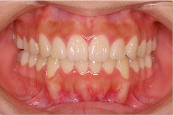再診時(非抜歯治療後)の画像(正面)