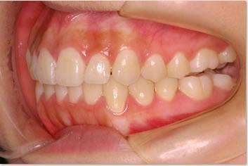 再診時(非抜歯治療後)の画像(側面)