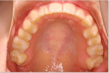 再診時(非抜歯治療後)の画像(上顎)