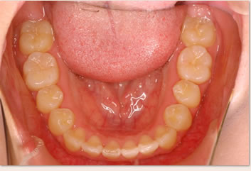 再診時(非抜歯治療後)の画像(下顎)