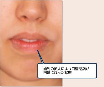 歯列の拡大により口唇閉鎖が困難になった状態