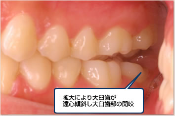 拡大により大臼歯が遠心傾斜し大臼歯部の開咬