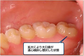 拡大により大臼歯が遠心傾斜し埋伏した状態