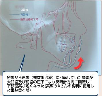 初診から再診(非抜歯治療)に回転していた顎骨が大臼歯及び前歯の圧下により反時計方向に回転し下顔面高が短くなった(実際のAさんの説明に使用した重ね合わせ)
