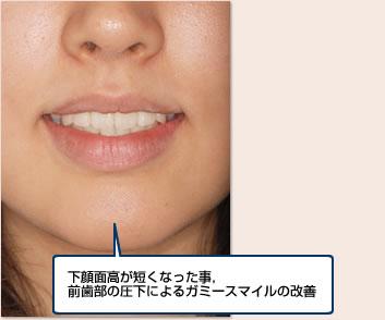 下顔面高が短くなったこと、前歯部の圧下によるガミースマイルの改善