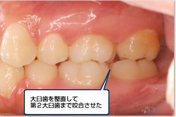 大臼歯を整直して第2大臼歯まで咬合させた