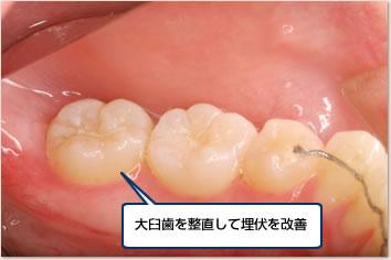 大臼歯を整直して埋伏を改善