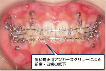 インプラントアンカーによる前歯・臼歯の圧下