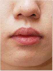 口唇が突出したことで 赤唇部の厚みが増している