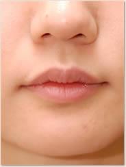 赤唇部の厚みも減少し理想的な唇の厚みに変化