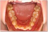上突咬合・両突歯列・叢生歯列 開始前 下顎