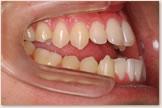 開咬をともなう骨格性下顎前突症 治療前 右側