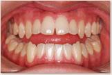 開咬をともなう骨格性下顎前突症 治療前 正面