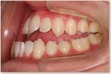 開咬をともなう骨格性下顎前突症 治療前 左側