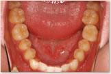 開咬をともなう骨格性下顎前突症 治療前 下顎