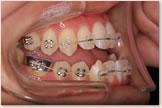 開咬をともなう骨格性下顎前突症 開始後 左側
