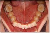 開咬をともなう骨格性下顎前突症 開始後 下顎