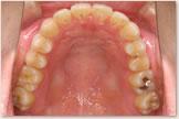 開咬をともなう骨格性下顎前突症 治療後 上顎