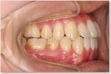 開咬をともなう骨格性下顎前突症 治療後 右側