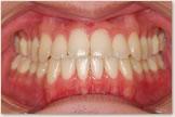 開咬をともなう骨格性下顎前突症 治療後 正面