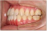 開咬をともなう骨格性下顎前突症 治療後 左側