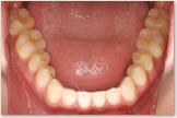 開咬をともなう骨格性下顎前突症 治療後 下顎